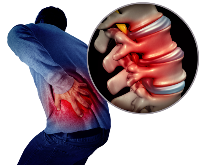 Guide to Sciatica Pain and Treatment Options